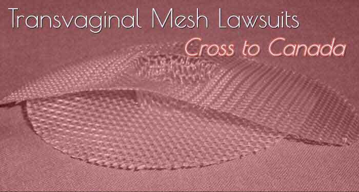 Class Action Lawsuit Against Transvaginal Mesh
